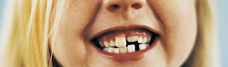 Il bambino digrigna i denti: cosa si può fare?